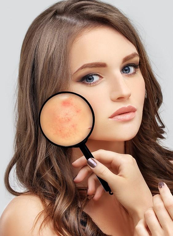 PMU dermatografie