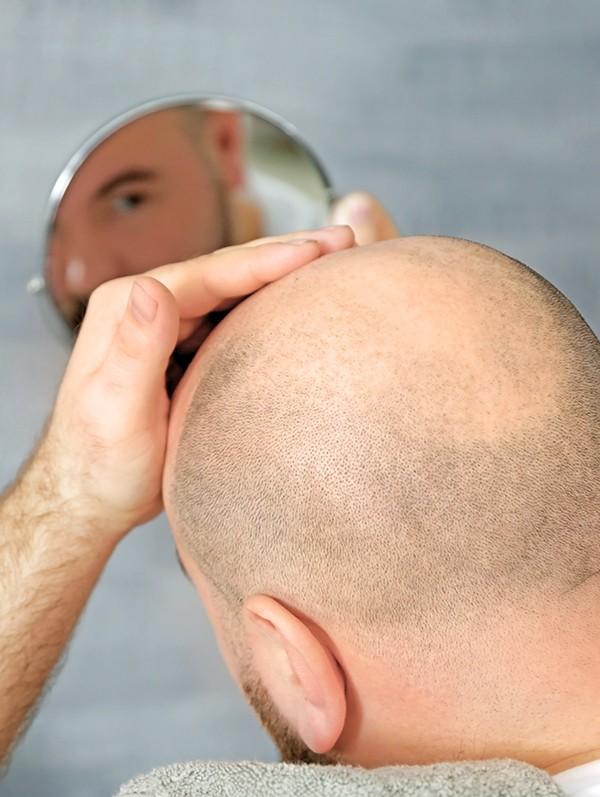 hairscalp opleiding