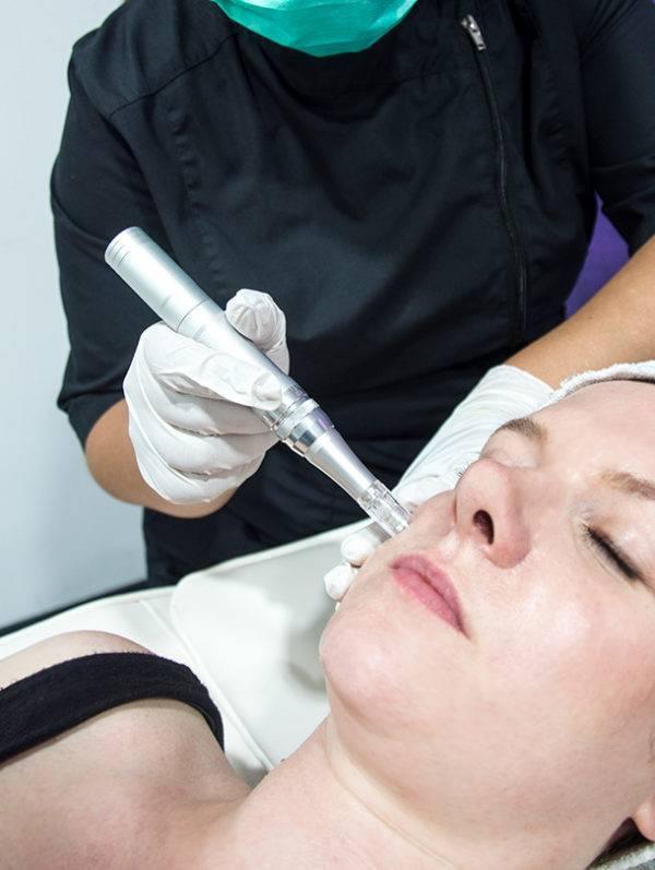 Micronaaldtherapie microneedling Jolange Opleidingen