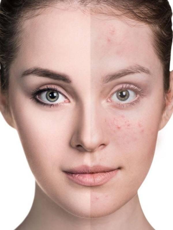 hydra facial opleiding